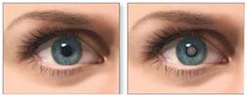 bdfb37321e Após a retirada de toda a catarata, é implantada uma lente intra-ocular,  que pode ser dobrável (flexível) ou não dobrável (rígida). Essa técnica é  realizada ...